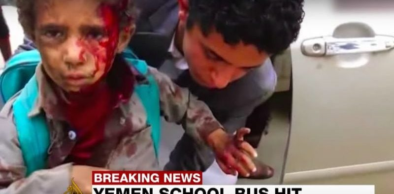 Young boy given medical help after an airstrike by Saudi Arabia hit his bus, screenshot via YouTube