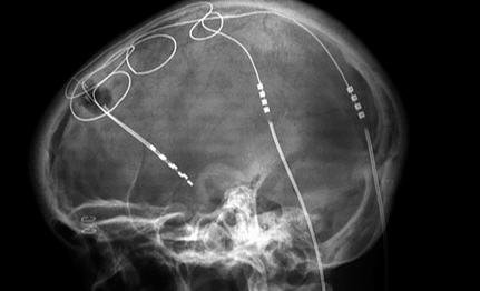 Can Electrode Implants Into the Brain Help Autism?